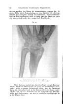 หน้า 82